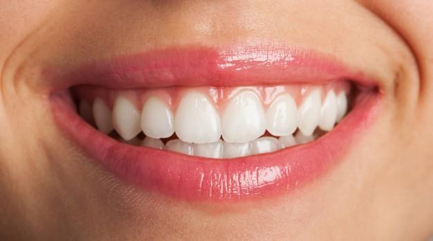 image for dental makeover
