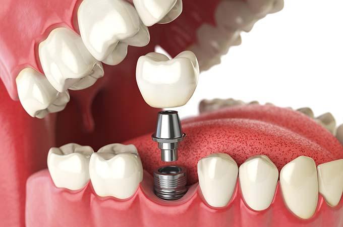 image for dentures vs implants