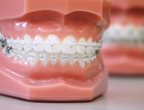 Damon Braces: Five Reason To Get It