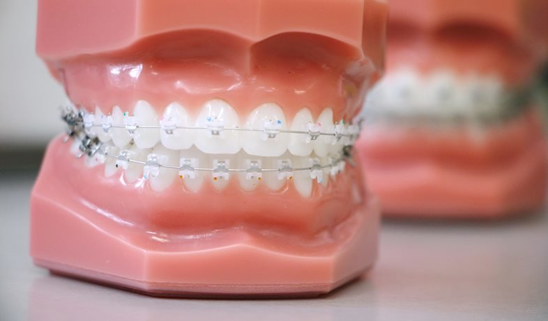 featured image for damon braces