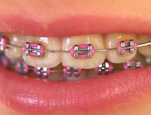 Affordable Dental Braces in the Philippines and MORE