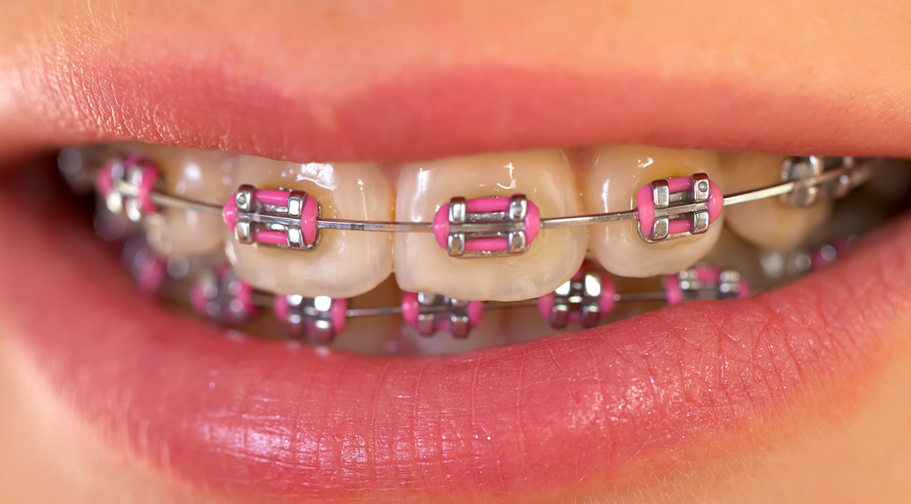featured image for affordable dental braces in the Philippines