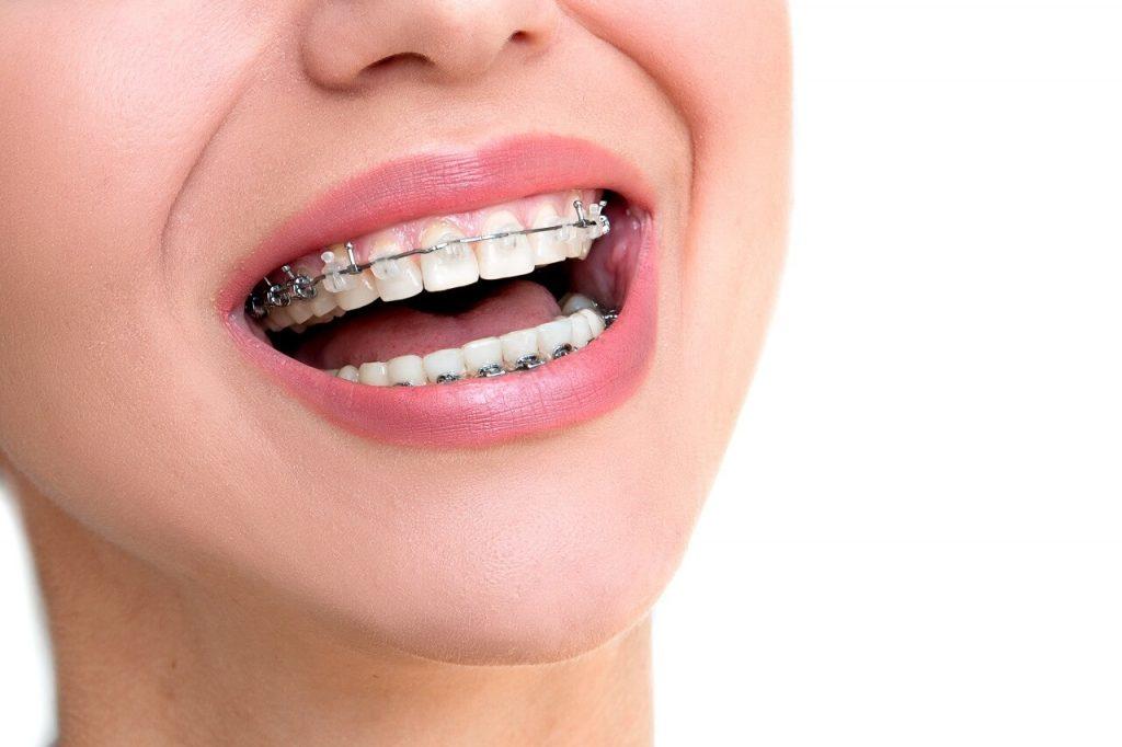 image for damon braces