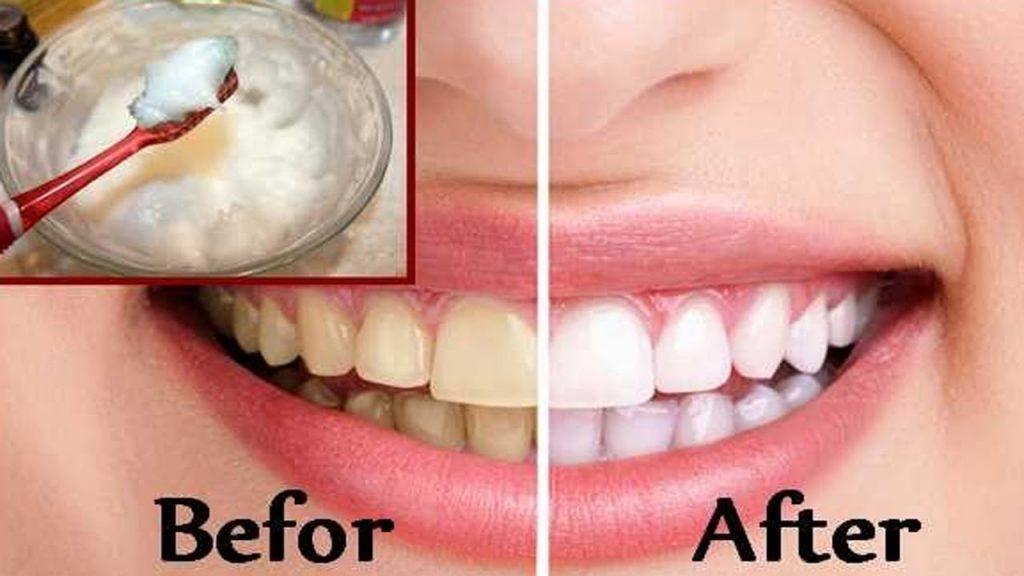 image for affordable dental
