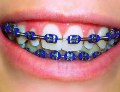 Dental Braces in Manila: Fashionable?