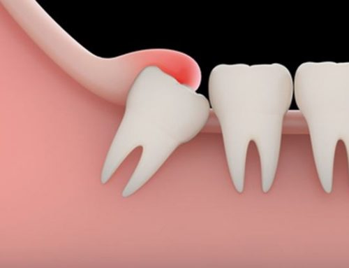 Impacted Wisdom Tooth Removal: Reminders