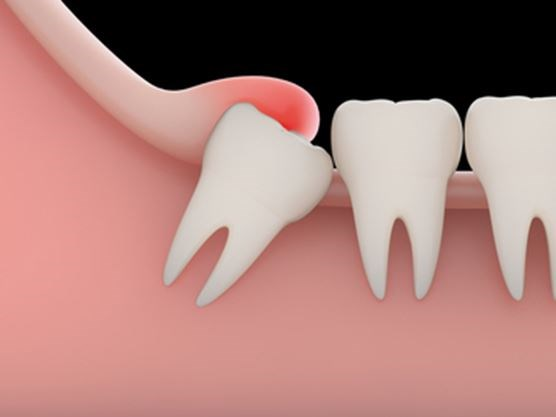 featured image for impacted wisdom tooth removal