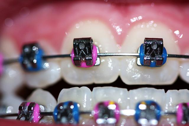 image for dental braces in manila