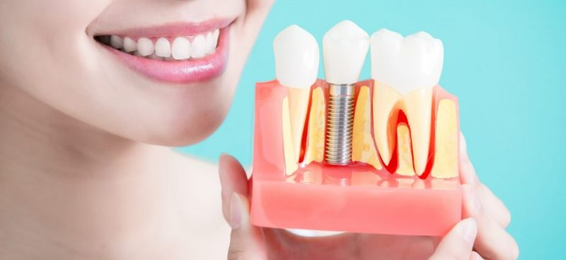 featured image for tooth implant in the philippines