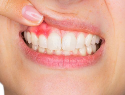 How To Treat Gum Disease: What to Do