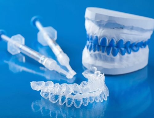 Do Teeth Whitening Products Work?