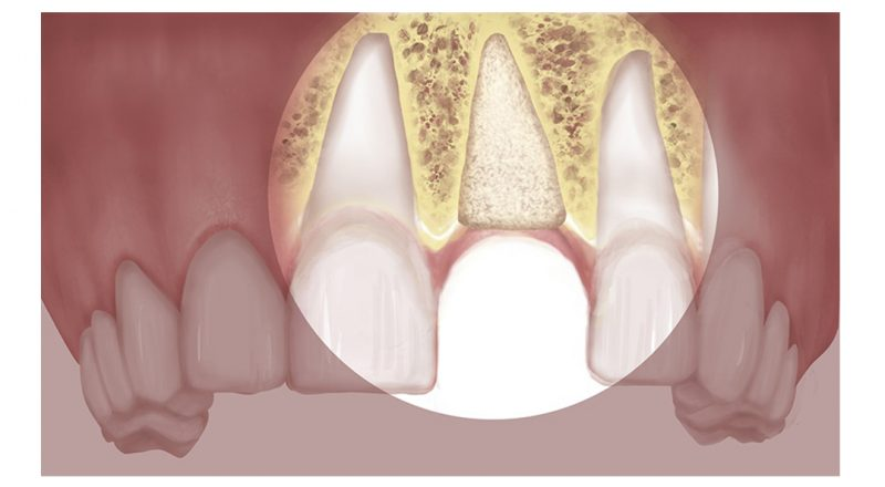 featured image for benefits of bone grafting