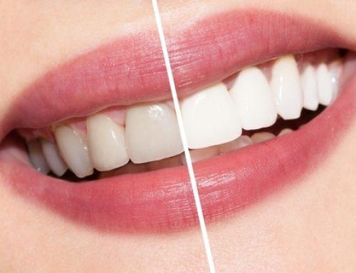 Do I Need Teeth Whitening?
