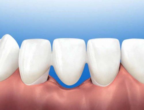 Teeth Bridge in the Philippines: How It's Useful
