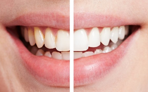 featured image for laser in teeth whitening