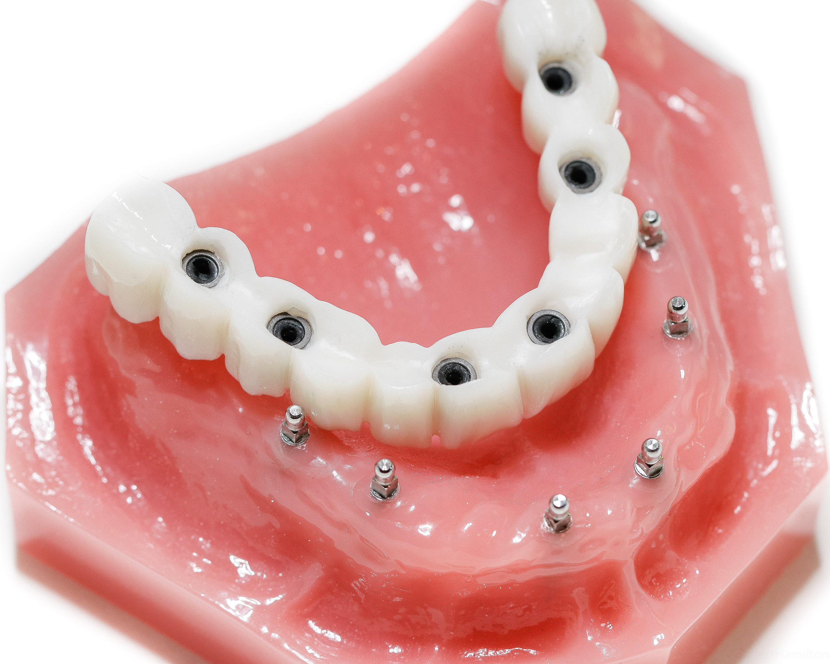 featured image for permanent dentures in the Philippines