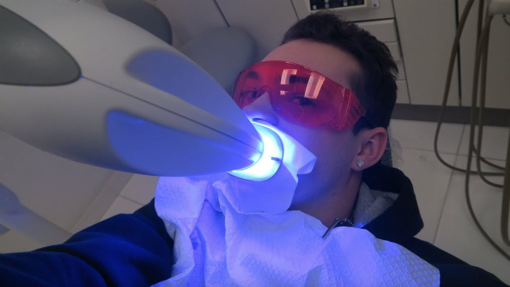 image for laser in teeth whitening