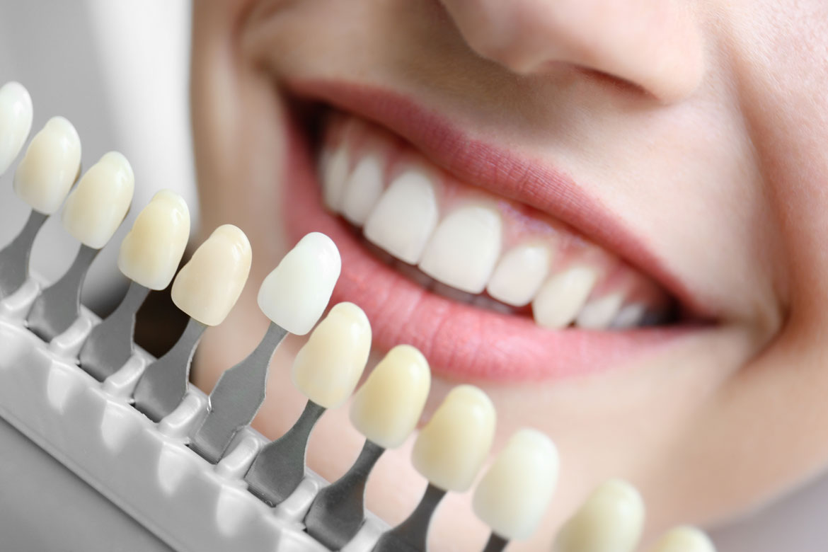 featured image for cosmetic dentistry in manila