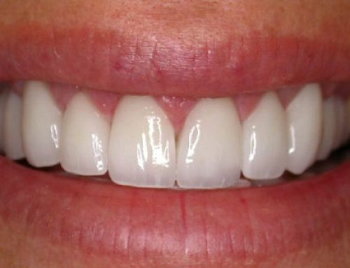 What Are Dental Veneers? Questions Answered