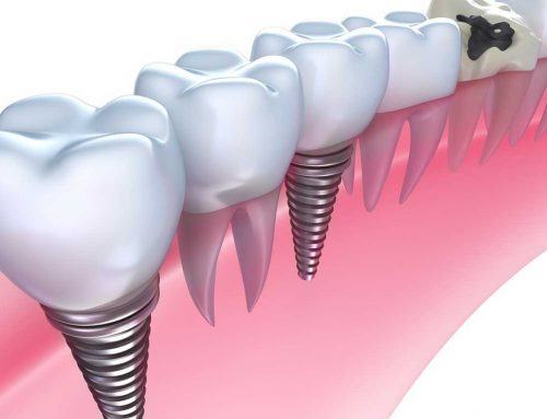 How Much Are Dental Implants in the Philippines?
