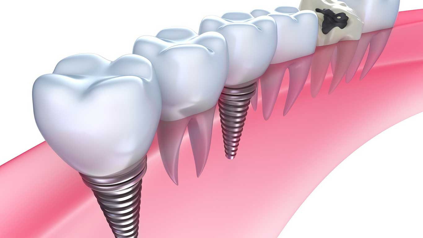 featured image for how much are dental implants in the philippines