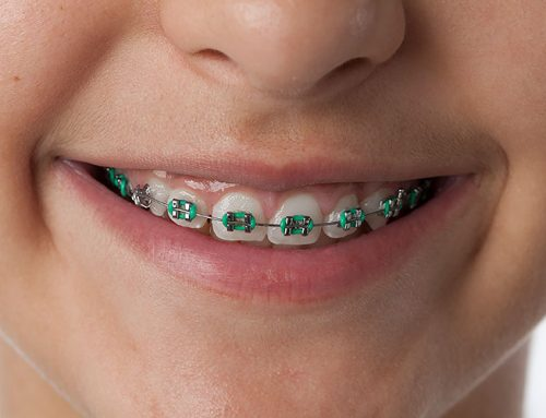 What Can Orthodontist in Manila Do?