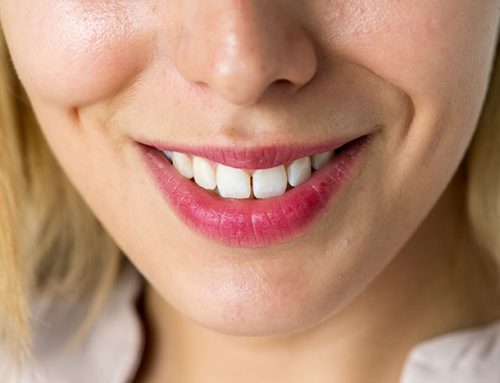 How Much Does It Cost To Whiten Your Teeth?