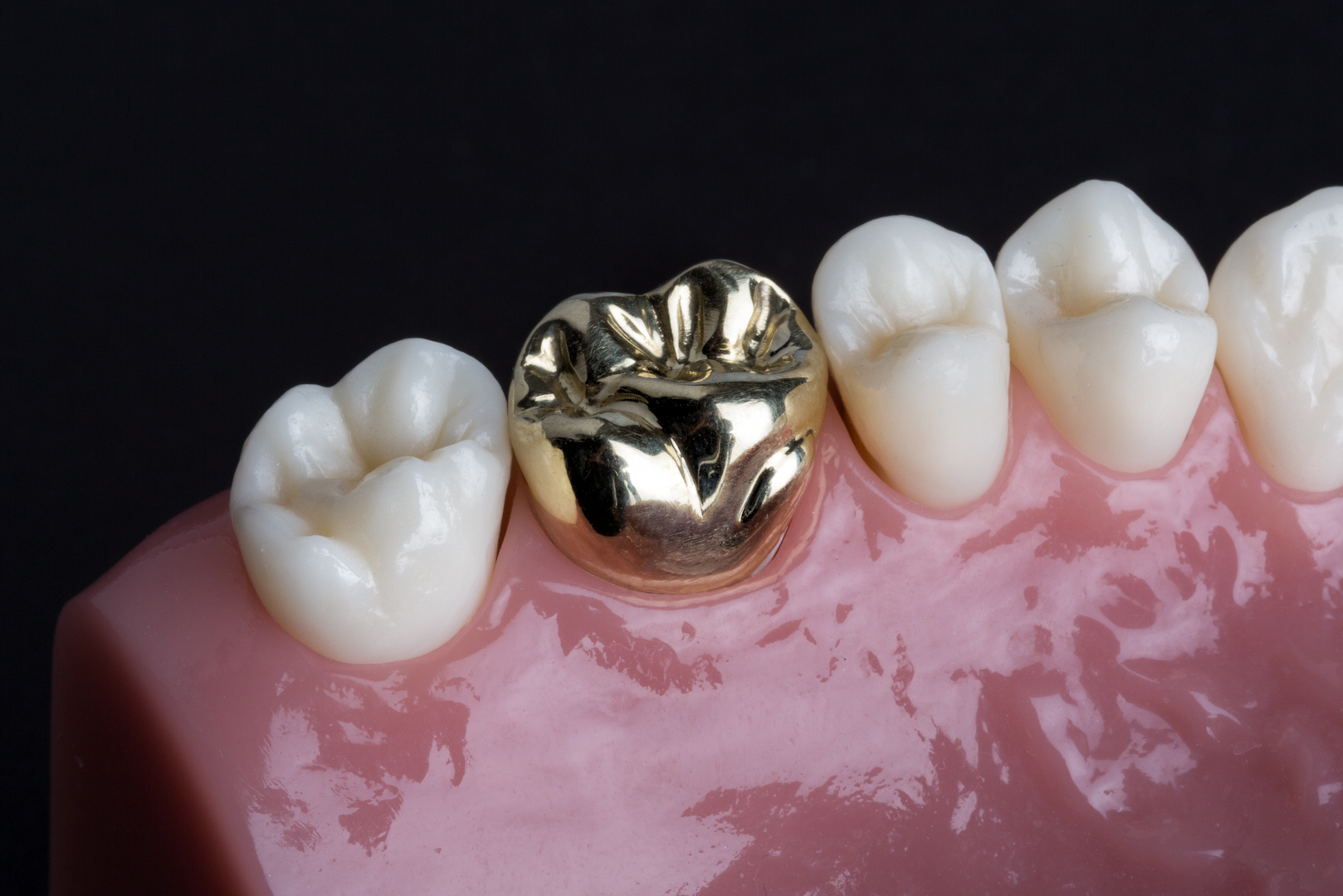 featured image for dental clinic in Manila