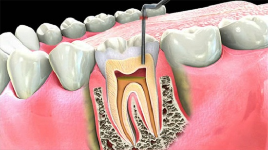 featured image for root canal from a Manila dental clinic