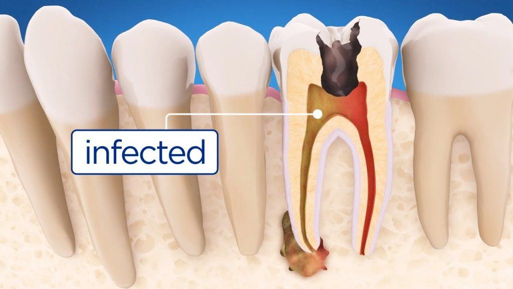 image for root canal from a Manila dental clinic