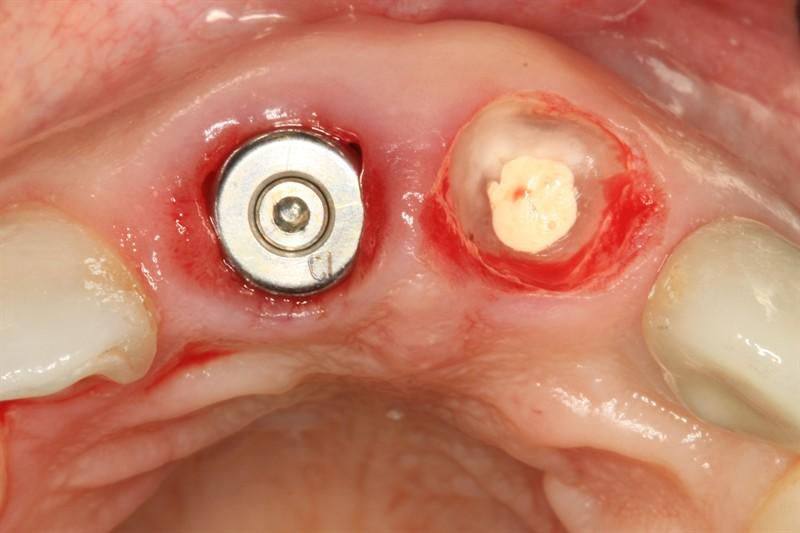 image for affordable dental implants