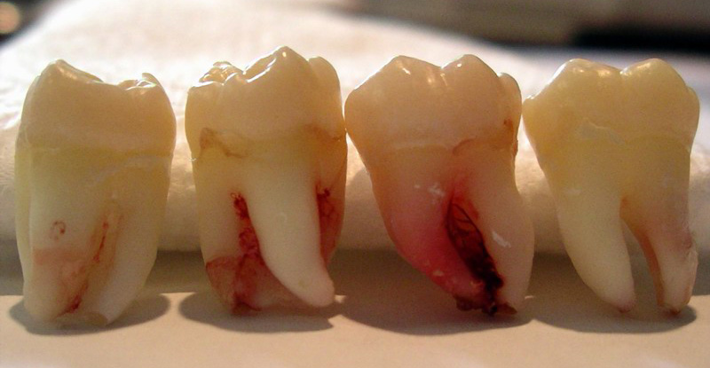 featured image age for wisdom teeth
