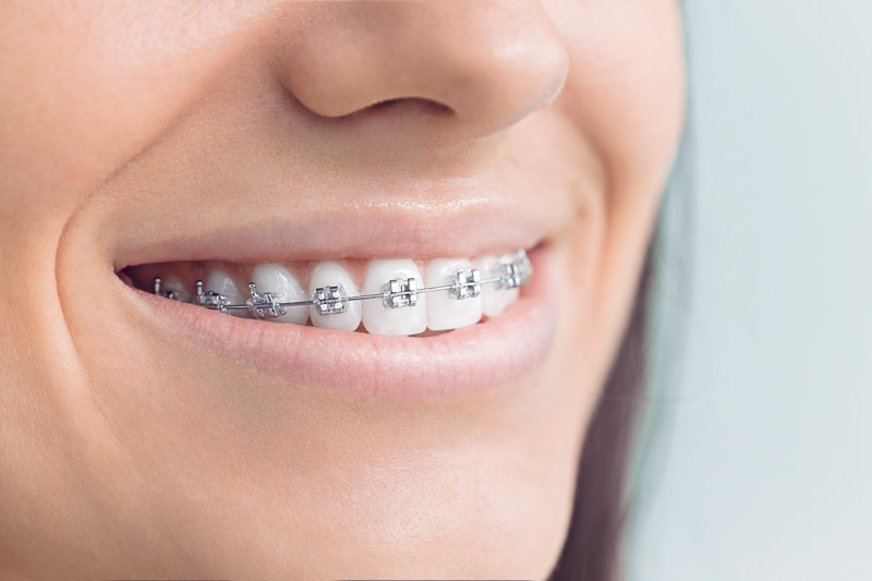 featured image for price of braces in the philippines