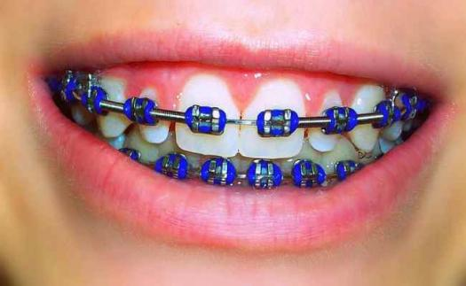 featured image for dental braces in manila