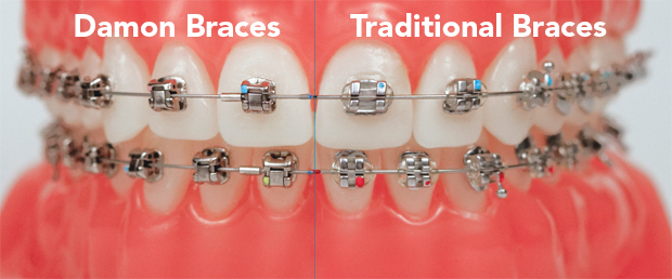 image for price of braces in the philippines