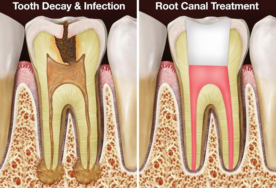 image for cost of a root canal in the philippines