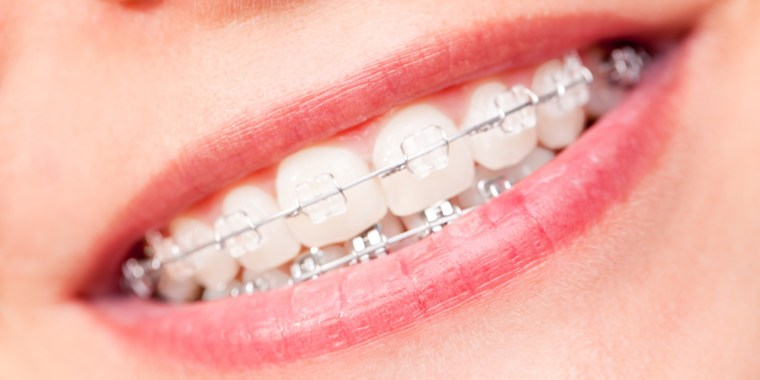 image for ceramic braces vs. metal braces