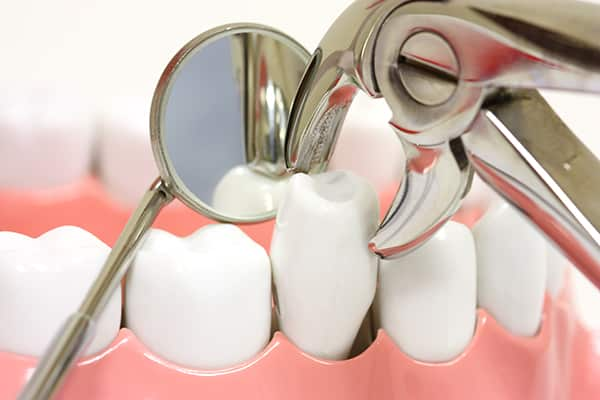 featured image for cost of a tooth extraction
