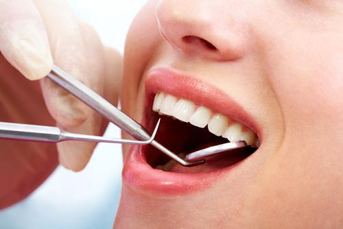 featured image for price of teeth cleaning in the philippines