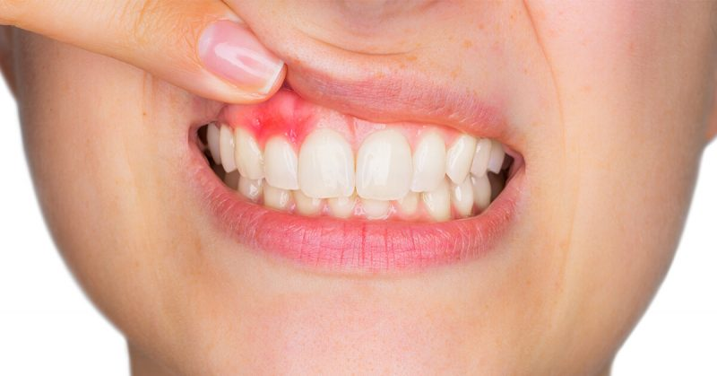 featured image for how to treat gum disease