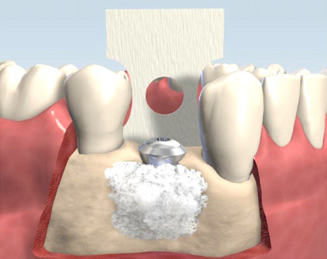 image for benefits of bone grafting