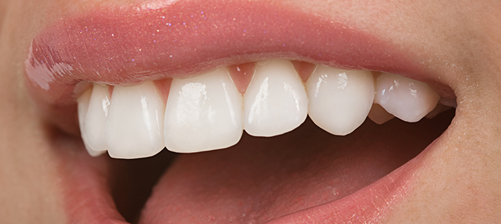 featured image for cosmetic dentistry