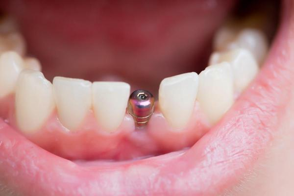 image for tooth implant in the philippines