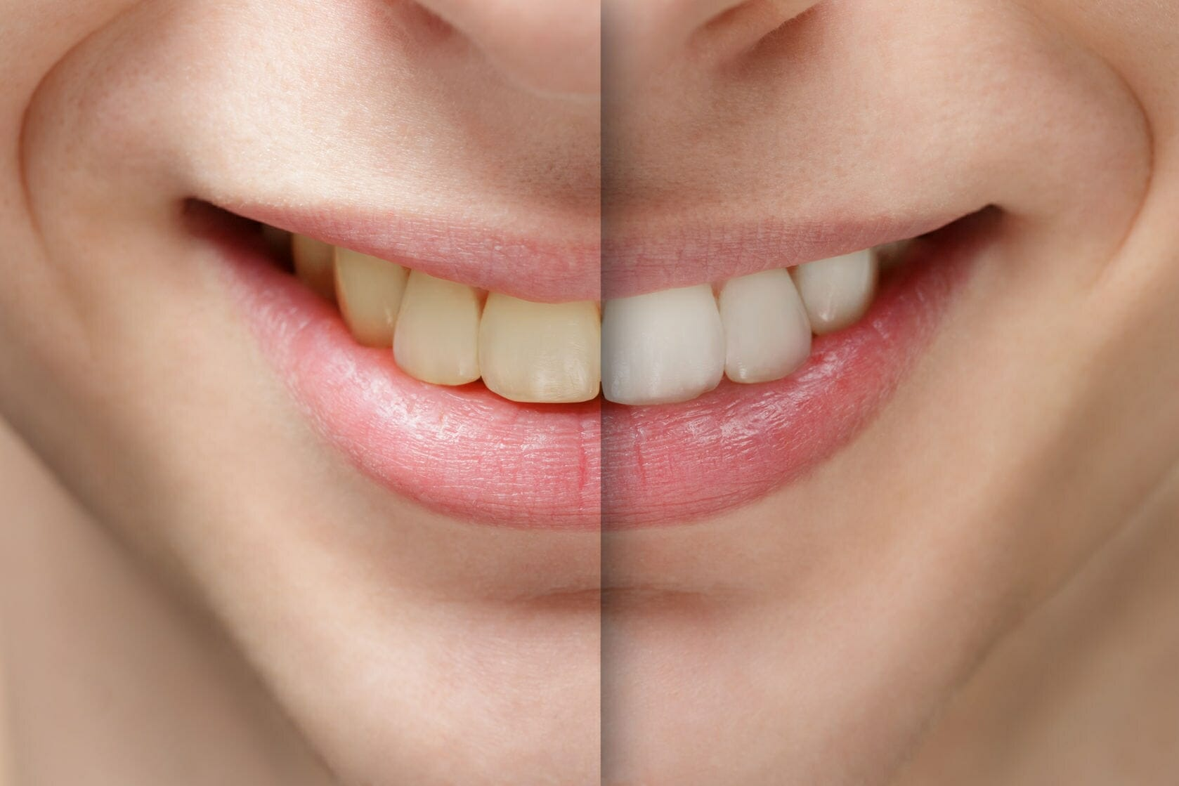 featured image for laser teeth whitening procedure