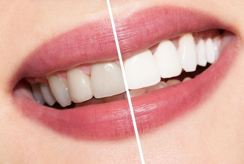 featured image for do i need teeth whitening