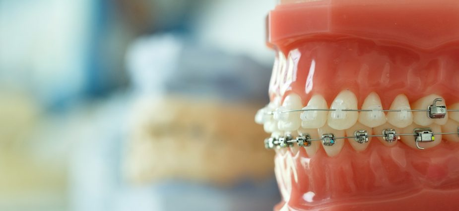 image for cosmetic dentistry