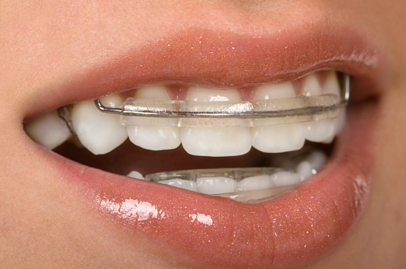 featured image for Cheap Retainers in Manila