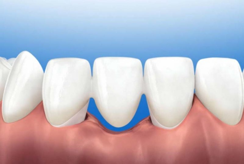 featured image for teeth bridge in the philippines