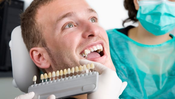 featured image for teeth whitening in manila