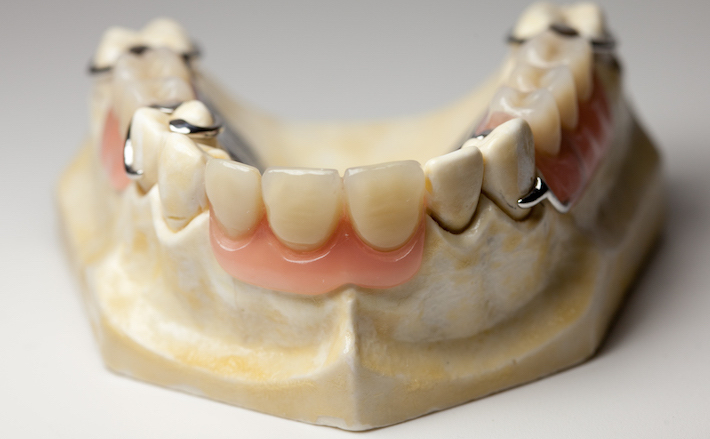 image for Cost of Partial Dentures in the Philippines